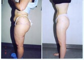 Liposuction Abdomen, Hips, Buttocks and Thighs