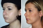 Rhinoplasty and liposuction under chin