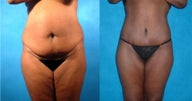 Lower Body Lift with Liposuction and Fat Injections