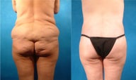 Lower Body Lift with Fat Transfer and Liposuction
