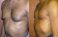 Liposuction for Gynecomastia (Male Breast Reduction)