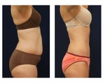 Tummy Tuck or Abdominoplasty