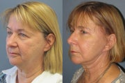 Lite Lift, upper and lower eyelid lift, liposuction of the neck, blue peel