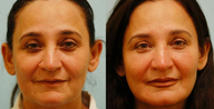Fat Transfer/Fat Grafting/Facial Rejuvenation