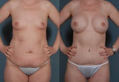 Mommy Makeover, Tummy Tuck, Liposuction, Breast Augmentation
