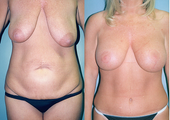 Tummy Tuck + Liposuction + Breast Lift + Implants