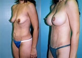 Post-Pregnancy Breast Augmentation Mastopexy + Tummy Tuck