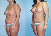 Mini Tummy Tuck with Lipo & Vertical Breast Lift