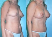 Breast Lift + Augmentation & Tummy tuck