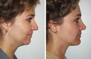 Rhinoplasty, Neck Lift and Chin Implant