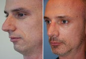 Rhinoplasty, Chin Implant