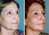 Non-Surgical Face Lift- Exoderm