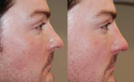 Non-Surgical Rhinoplasty with Silikon-1000