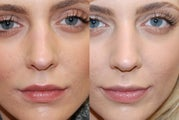 Non-Surgical Rhinoplasty to lower nostrils