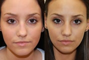 Non-Surgical Rhinoplasty with Silikon-1000. 3 treatments.
