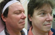 Intense pulsed light (IPL) photofacial for severe sun damage