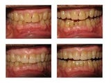 Three Veneers Placed