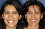 Four veneers and whitening