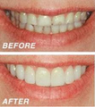 Cosmetic dentistry with composite veneers