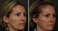 Revision Rhinoplasty and Sculptra
