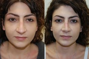Revision Rhinoplasty. Early, 5-weeks post-op, front view
