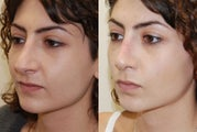 Revision Rhinoplasty. Early, 5-weeks post-op. 3/4 view