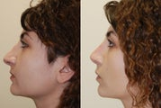 Revision Rhinoplasty. Early, 5-weeks post-op. Profile view.