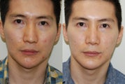 Revision Rhinoplasty and Chin Implant Surgery.