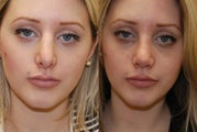 Revision Rhinoplasty. 1 month post-op.