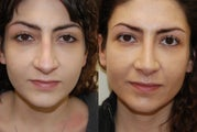 Revision Rhinoplasty Surgery. 1 year post-op.