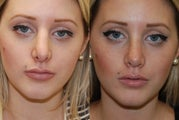 Revision Rhinoplasty. 6-months post-op.