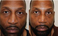 African-American Rhinoplasty Male Nose Job