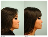 Asian Female Rhinoplasty