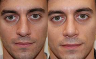 Rhinoplasty, 6 weeks post-op.