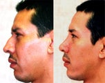 Rhinoplasty- Hispanic Male