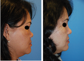 Rhinoplasty with Medpor