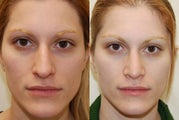 Rhinoplasty Surgery. 4 months post-op. Frontal view.