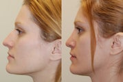 Rhinoplasty Surgery. 4 months post-op. Profile view.
