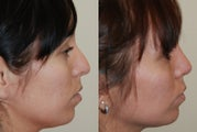 Rhinoplasty Surgery. 4 months post-op
