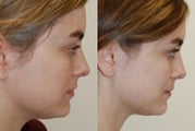 Rhinoplasty Surgery. 1 year post-op.