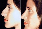 38 year old female, rhinoplasty