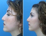 Rhinoplasty side facial profile of nose