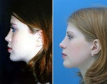 Rhinoplasty side view of nose and facial features