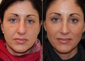 Rhinoplasty and IPL PhotoFacial