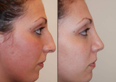 Rhinoplasty, profile view