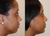 Rhinoplasty with bridge implant and chin implant
