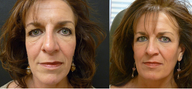 Sculptra combined with Botox creates a beautiful liquid facelift