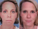 Sculptra filler in Cheeks and Temples