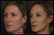 Sculptra for Volume and Contouring