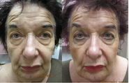 Sculptra facial rejuvenation